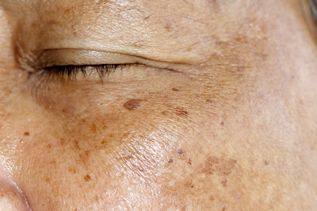 פיגמנטציה בעור
